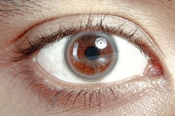 7 dấu hiệu lạ của mắt cảnh báo sức khỏe gia đình bạn đang gặp vấn đề: Có vòng trắng quanh giác mạc