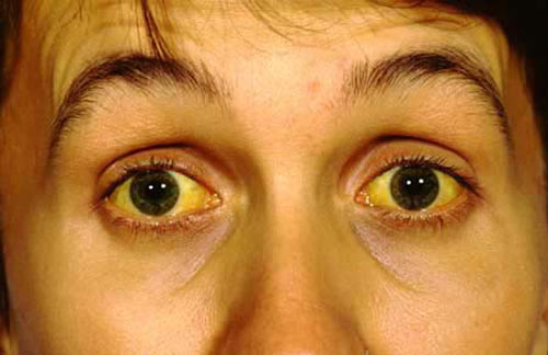 7 dấu hiệu lạ của mắt cảnh báo sức khỏe gia đình bạn đang gặp vấn đề: Tròng mắt bị vàng
